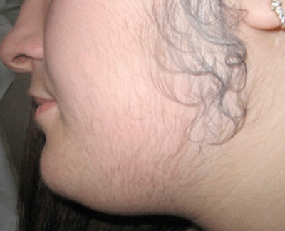 Excessive body hair is a common symptom of PCOS